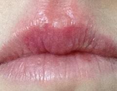 cold sore virus on lip