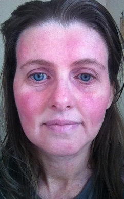 My red allergy face