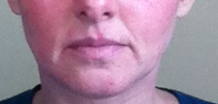 Testing Herstat cold sore ointment - day 6