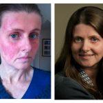 How Protopic healed my facial eczema