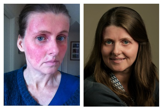 steroid cream effects on skin
