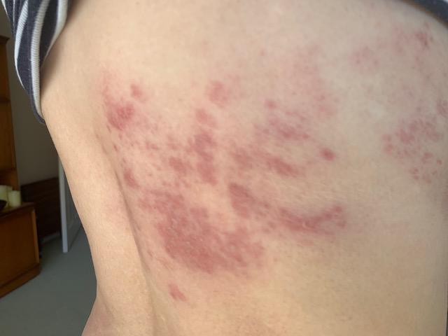 shingles on my back