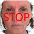 Stop Dr Sandra Lee promoting Super Cortisone as beauty product