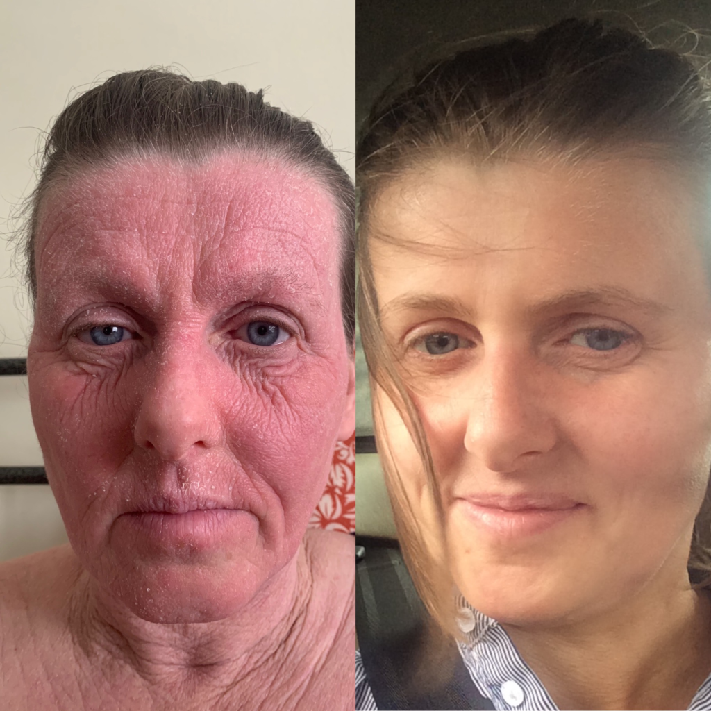 TSW skin aging