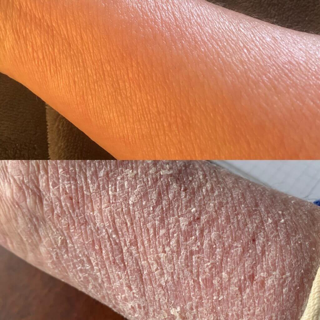 TSW arm skin shedding